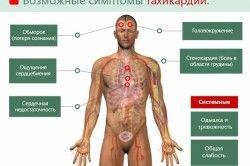 Можливі симптоми тахікардії