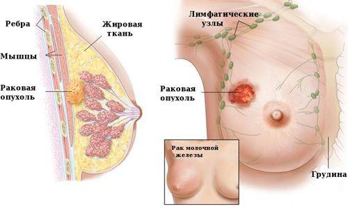 Класифікація стадій раку молочної залози