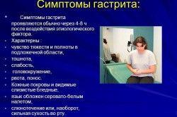 симптоми гастриту