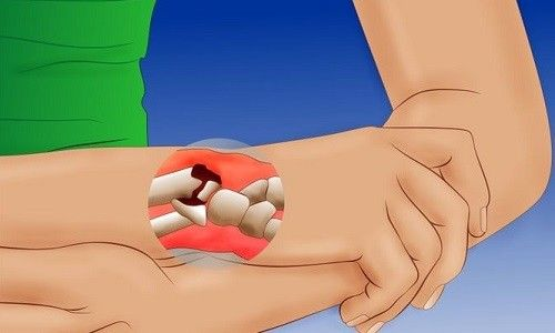 Період відновлення після перелому зап`ястя руки