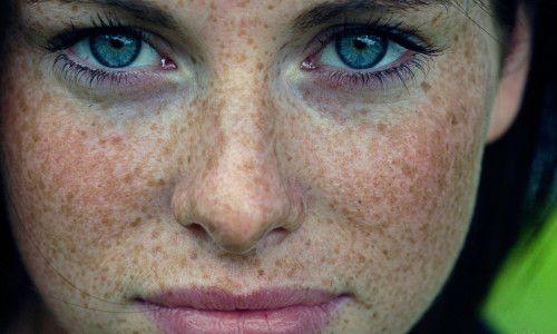 Пігментація на обличчі: причини і лікування в домашніх умовах