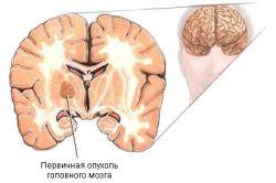 Пухлина - причина прострілів в голові
