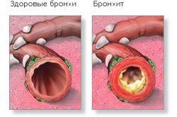 Чому у дитини виникає кашель до блювоти?