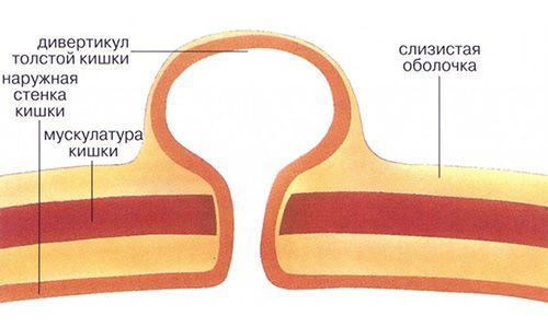 Причини, симптоми і лікування дивертикулеза сигмовидної кишки