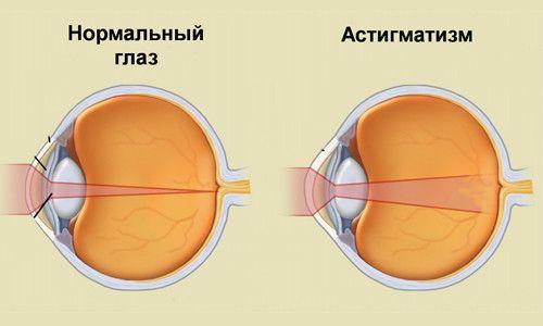 Принципи лікування астигматизму