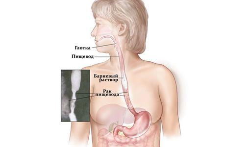 Принципи лікування раку стравоходу