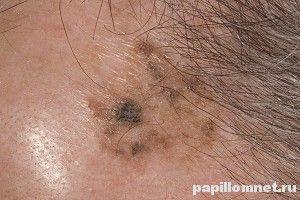 Процедура лікування меланоми в москві