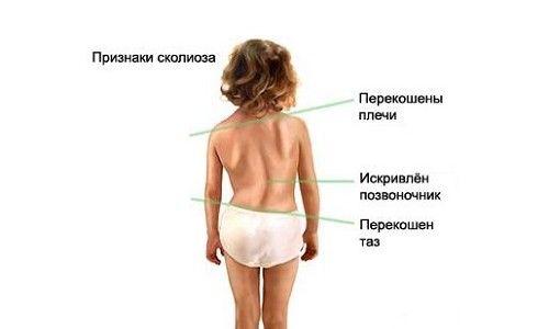 Особливості сколіозу у дітей