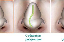 Прояви і способи лікування забиття носа