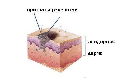 Симптоми і лікування плоскоклітинного раку шкіри