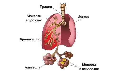 Симптоми і лікування пневмонії в домашніх умовах у дітей
