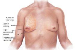 Симптоми і причини розвитку гінекомастії у чоловіків