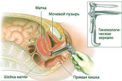 Симптоми вказують на ендометріоз: що робити?