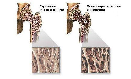 Види і форми остеогенної саркоми у дорослих і дітей